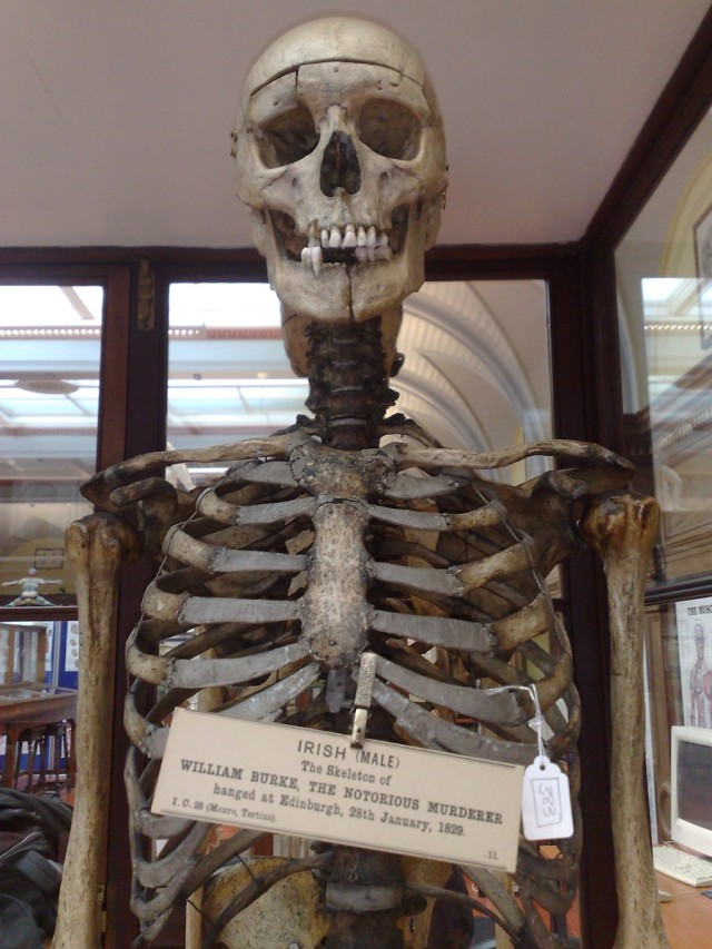 The skeleton of William Burke. On display at Edinburgh's Anatomy Museum. Image courtesy of Murderpedia